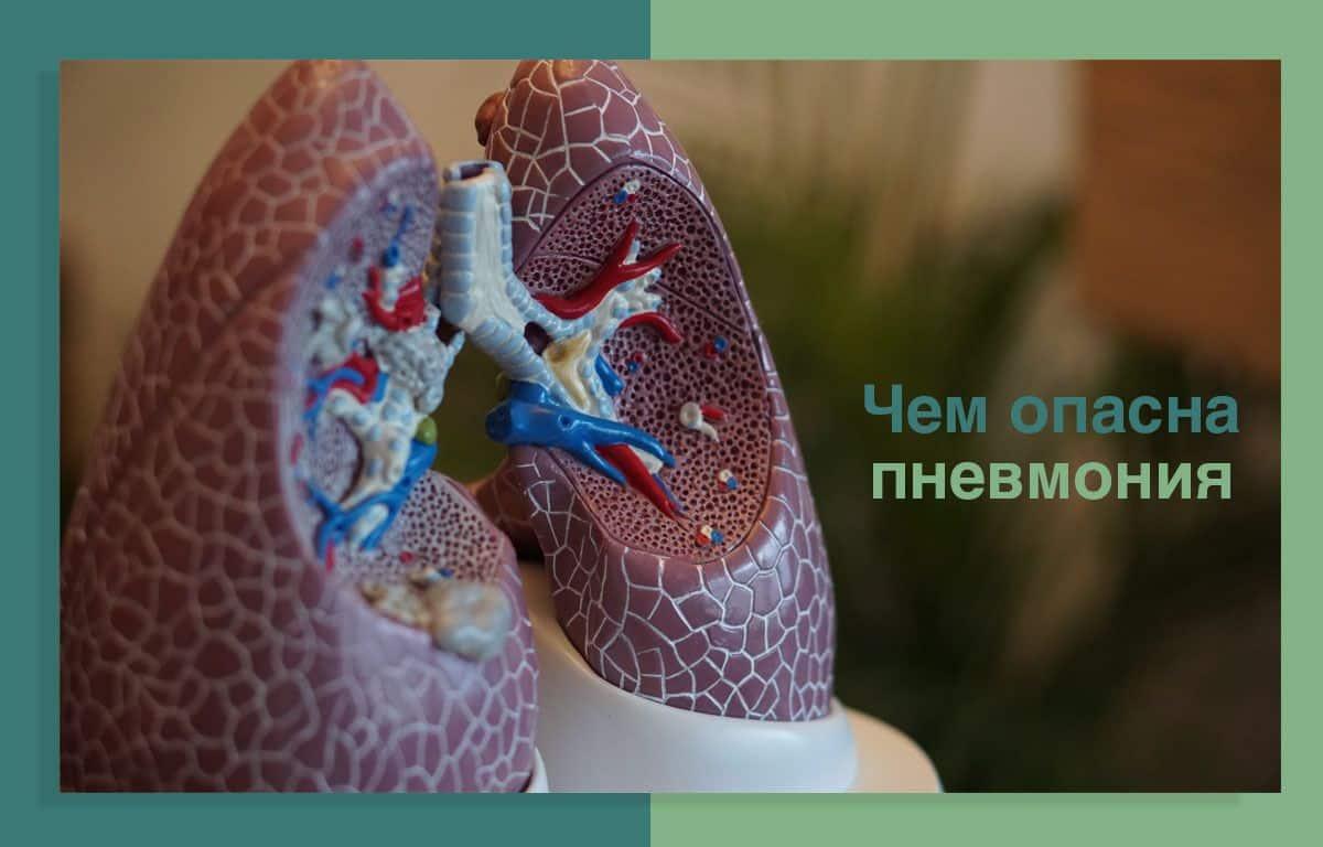 chem-opasna-pnevmoniya