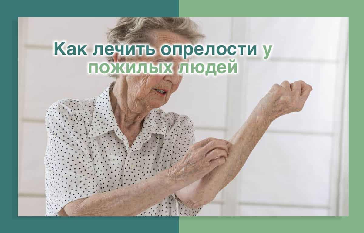 Как лечить опрелости у пожилых людей
