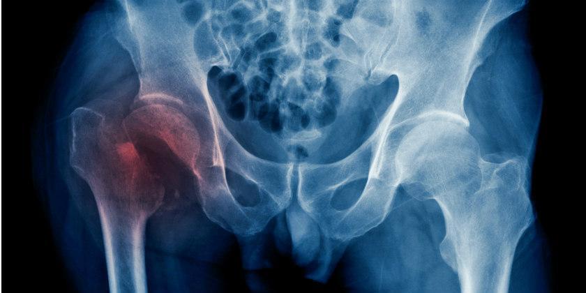рентген перелома картинка